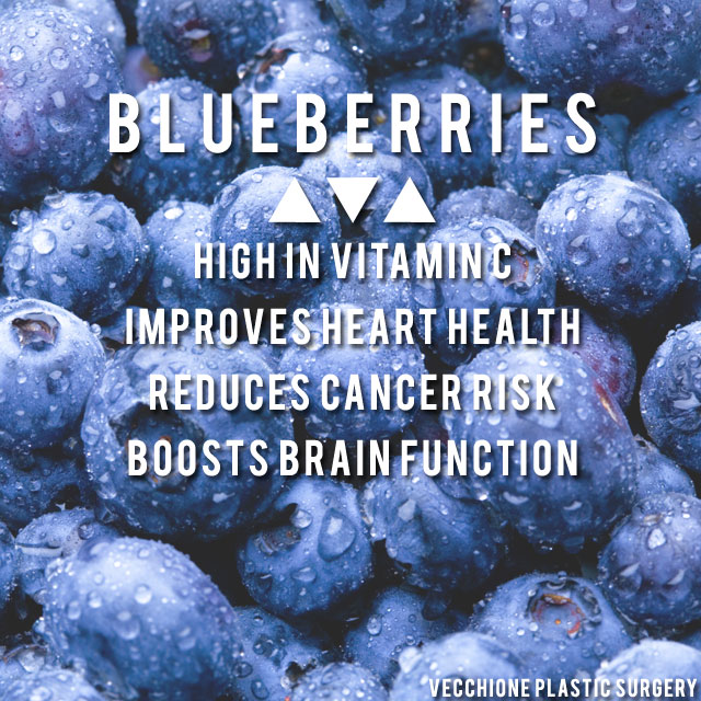 VPS-Blueberries